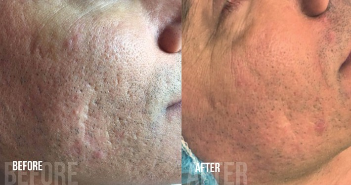 Acne en acnelittekens behandeling voor en na foto's