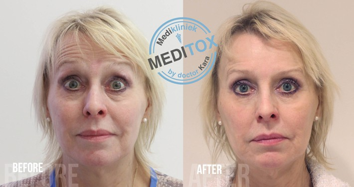 botox behandeling tegen rimpels voor en na foto's
