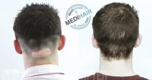 Haartransplantatie op een litteken voor en na foto's