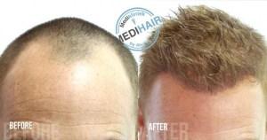Inhammen haartransplantatie bij Medikliniek Amsterdam