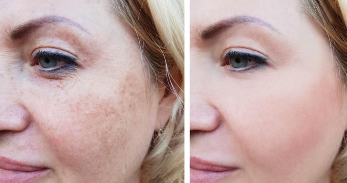 Pigment behandeling voor en na foto's