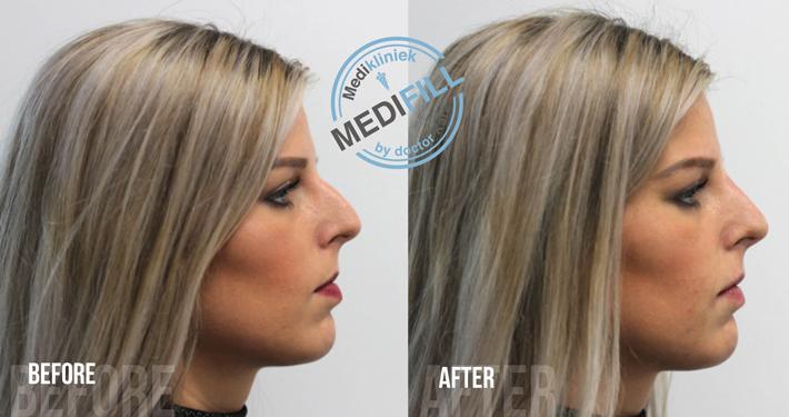 Neuscorrectie neuslift met fillers en botox