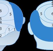 Gebieden (zones) Haartransplantatie Prijsindicatie